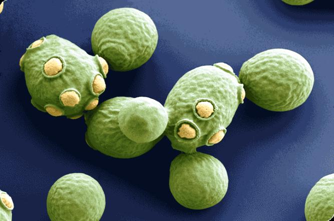 saccharomyces-cerevisie-la-cerveza-segun-levadura-el-portal-del-Chacinado